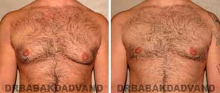 Before and After Treatment Photos: gynecomastia surgery- 40 year old patient