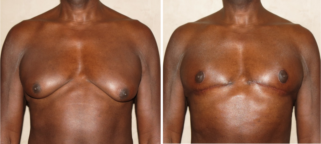 Before and After Photos: NIPPLE REPOSITIONING