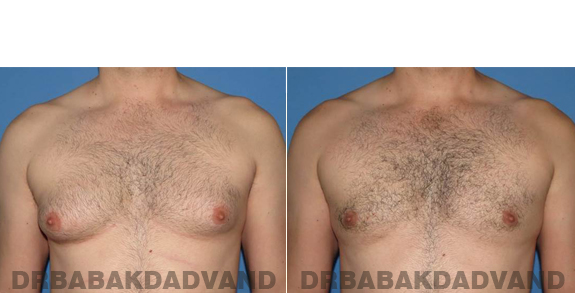 Gynecomastia. Before and After Treatment Photos - male - front view (patient - 56)