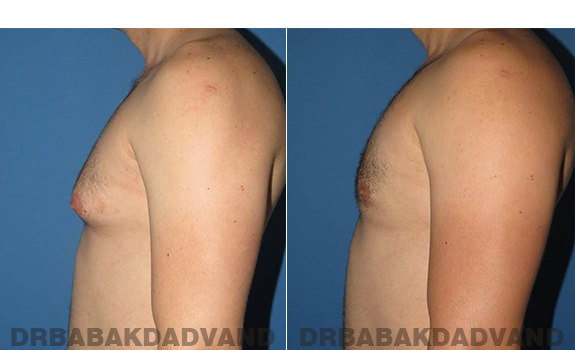 Gynecomastia. Before and After Treatment Photos - male - left side view (patient - 56)