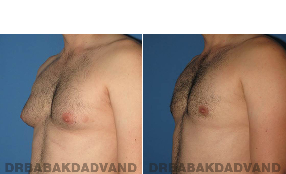 Gynecomastia. Before and After Treatment Photos - male - left side oblique view (patient 56)