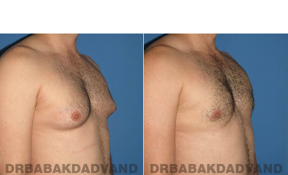 Gynecomastia. Before and After Treatment Photos - male - right side oblique view (patient - 56)