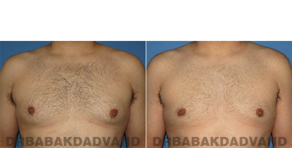 Gynecomastia. Before and After Treatment Photos - male - front view (patient - 57)