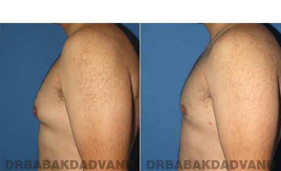 Gynecomastia. Before and After Treatment Photos - male - left side view (patient - 57)