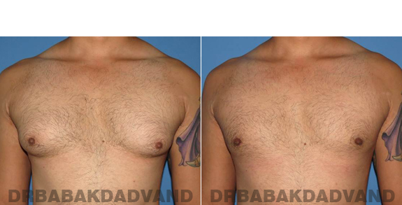 Gynecomastia. Before and After Treatment Photos - male - front view (patient - 58)