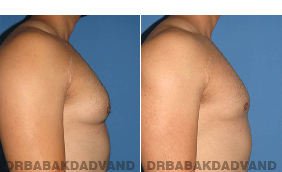 Gynecomastia. Before and After Treatment Photos - male - right side view (patient - 58)
