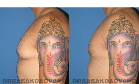 Gynecomastia. Before and After Treatment Photos - male - left side view (patient - 58)