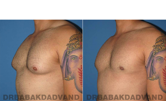Gynecomastia. Before and After Treatment Photos - male - left side oblique view (patient 58)