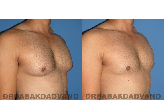 Gynecomastia. Before and After Treatment Photos - male - right side oblique view (patient - 58)