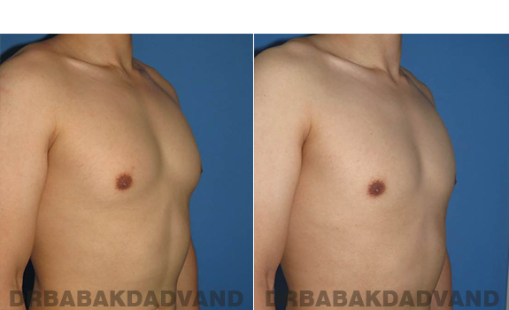 Gynecomastia. Before and After Treatment Photos - male - right side oblique view (patient - 59)