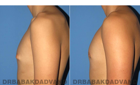 Gynecomastia. Before and After Treatment Photos - male - left side view (patient - 60)