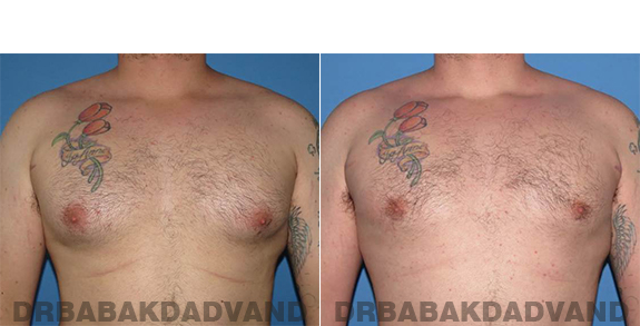 Gynecomastia. Before and After Treatment Photos - male - front view (patient - 61)