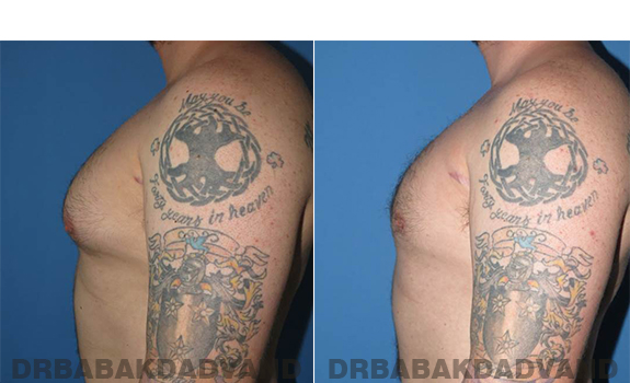 Gynecomastia. Before and After Treatment Photos - male - left side view (patient - 61)
