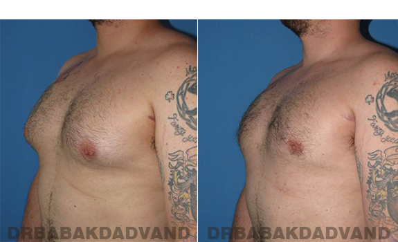 Gynecomastia. Before and After Treatment Photos - male - left side oblique view (patient 61)
