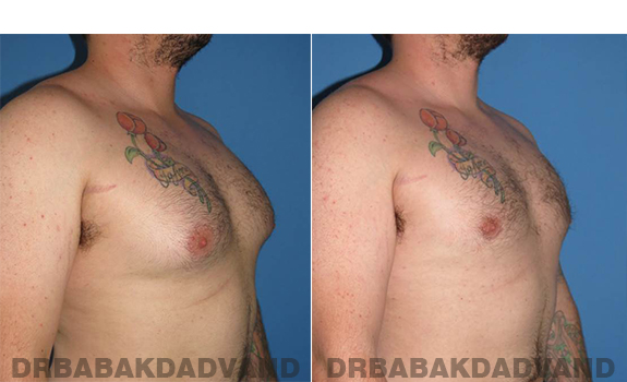 Gynecomastia. Before and After Treatment Photos - male - right side oblique view (patient - 61)
