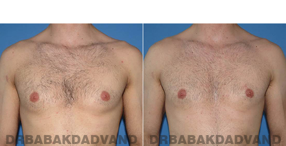 Gynecomastia. Before and After Treatment Photos - male - front view (patient - 62)