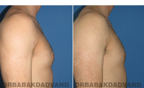 Gynecomastia. Before and After Treatment Photos - male - right side view (patient - 62)