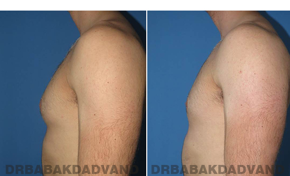 Gynecomastia. Before and After Treatment Photos - male - left side view (patient - 62)