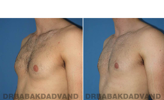 Gynecomastia. Before and After Treatment Photos - male - left side oblique view (patient 62)