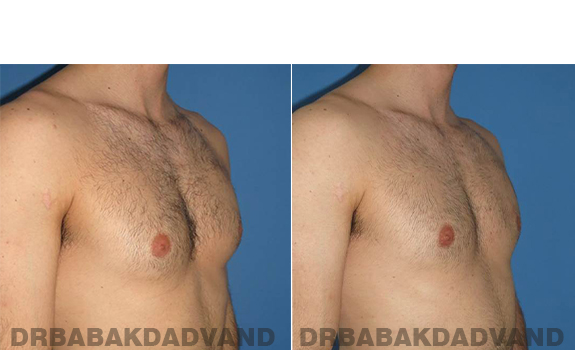 Gynecomastia. Before and After Treatment Photos - male - right side oblique view (patient - 62)