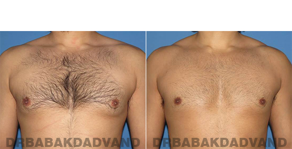 Gynecomastia. Before and After Treatment Photos - male - front view (patient - 63)