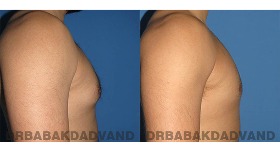 Gynecomastia. Before and After Treatment Photos - male - right side view (patient - 63)