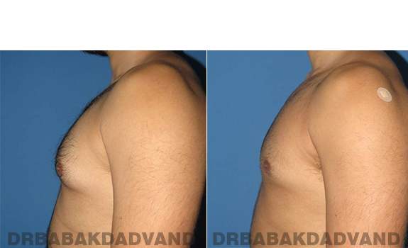 Gynecomastia. Before and After Treatment Photos - male - left side view (patient - 63)