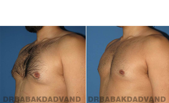 Gynecomastia. Before and After Treatment Photos - male - left side oblique view (patient 63)
