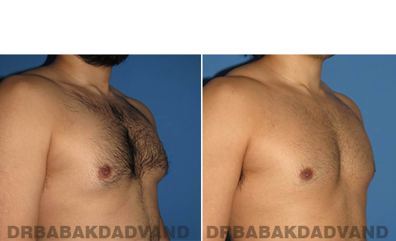 Gynecomastia. Before and After Treatment Photos - male - right side oblique view (patient - 63)
