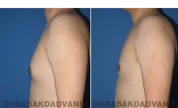 Gynecomastia. Before and After Treatment Photos - male - left side view (patient - 64)