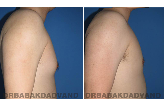 Gynecomastia. Before and After Treatment Photos - male - right side view (patient - 64)