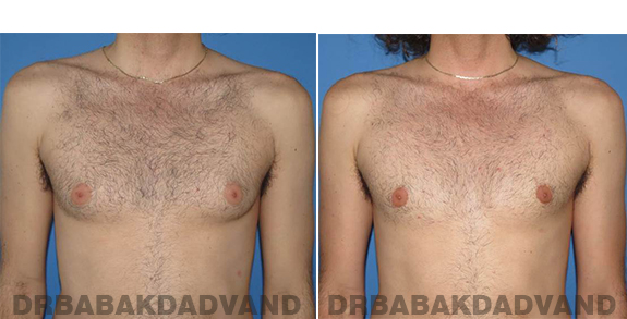 Gynecomastia. Before and After Treatment Photos - male - front view (patient - 65)