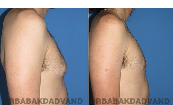 Gynecomastia. Before and After Treatment Photos - male - right side view (patient - 65)
