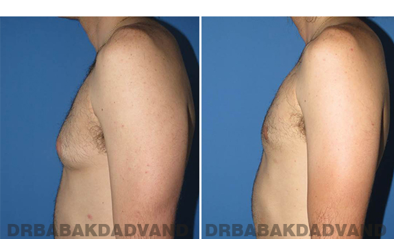 Gynecomastia. Before and After Treatment Photos - male - left side view (patient - 65)
