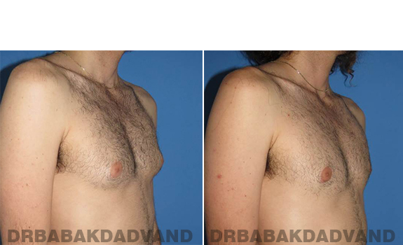 Gynecomastia. Before and After Treatment Photos - male - right side oblique view (patient - 65)
