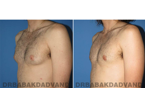 Gynecomastia. Before and After Treatment Photos - male - left side oblique view (patient 65)