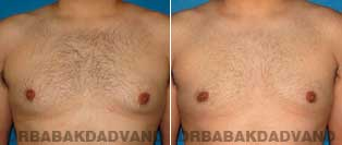 Before and After Treatment Photos - Gynecomastia Surgery - 27 year old, patient