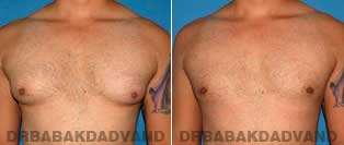 Before and After Treatment Photos - Gynecomastia Surgery - 28 year old, patient