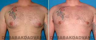Before and After Treatment Photos - Gynecomastia Surgery - 34 year old, patient