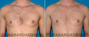 Before and After Treatment Photos - Gynecomastia Surgery - 31 year old, patient