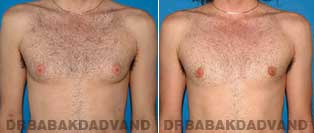 Before and After Treatment Photos - Gynecomastia Surgery - 27 year old,patient