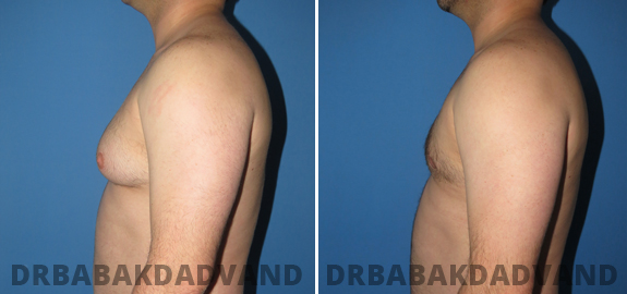 Abdominoplasty. Before and After Treatment Photos - male - front view (patient - 70)