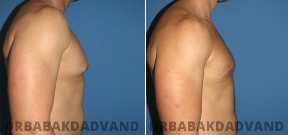 Abdominoplasty. Before and After Treatment Photos - male - front view (patient - 71)