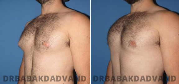 Abdominoplasty. Before and After Treatment Photos - male - front view (patient - 74)