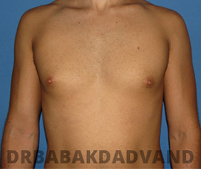Before & After Puffy Nipples 13 Big Photo