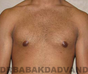 Before & After Puffy Nipples 5 Adult Big Photo