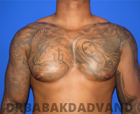 Before & After Body Builders 10 Big Photo