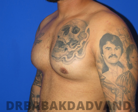 Before & After Body Builders 12 Big Photo