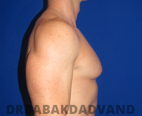 Before & After Body Builders 11 Big Photo
