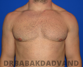 Before & After Body Builders 13 Big Photo